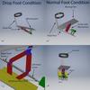 Foot Drop Healing Device